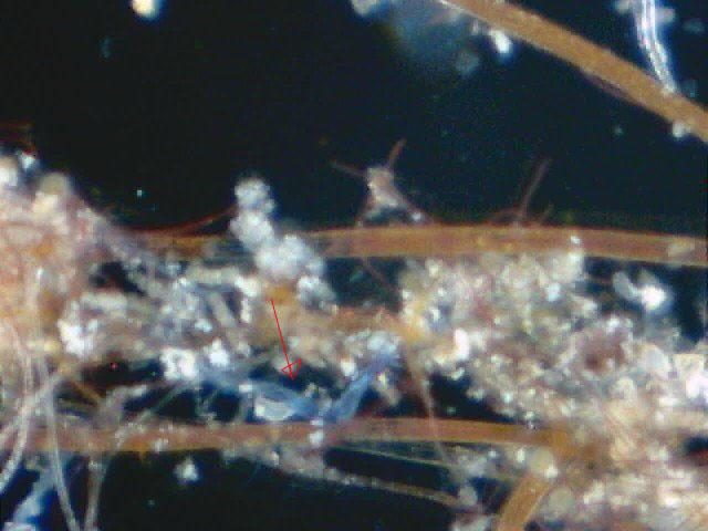 マイクロ画像4