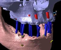 3D CT レンダリング画像
