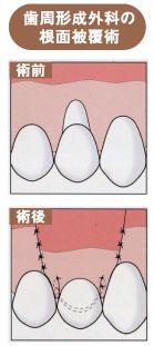 歯周外科手術のひとつ