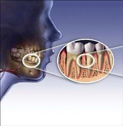 歯周病の概念図