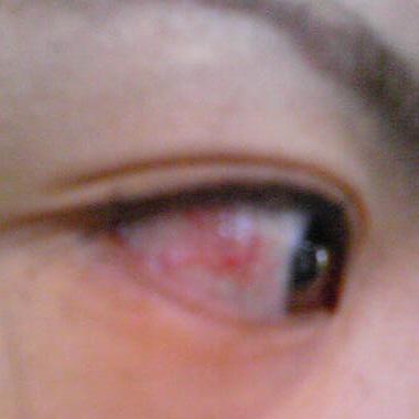 充血 真っ赤 の 目 片目だけ充血する6つの原因は?病気の可能性や対策方法を知っておこう!