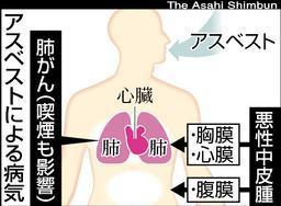 アスベスト肺図