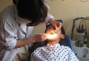 ダワの虫歯治療