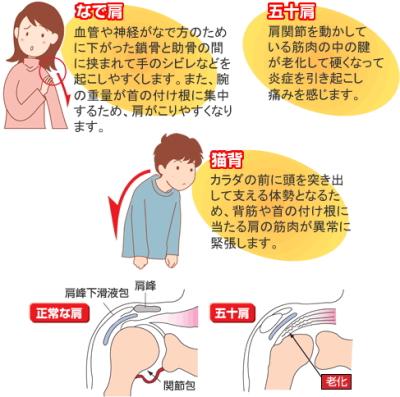 チタンの力磁気姿勢ベルトで肩こり、腰痛、五十肩を撃退